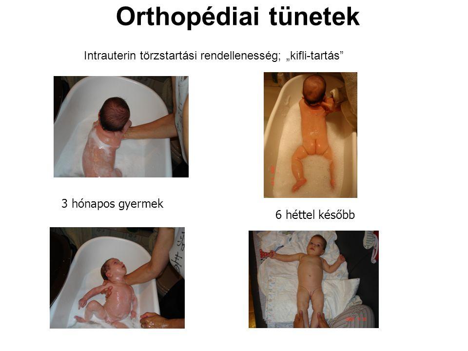 """Orthopédiai tünetek Intrauterin törzstartási rendellenesség; """"kifli-tartás"""" 3 hónapos gyermek 6 héttel később"""