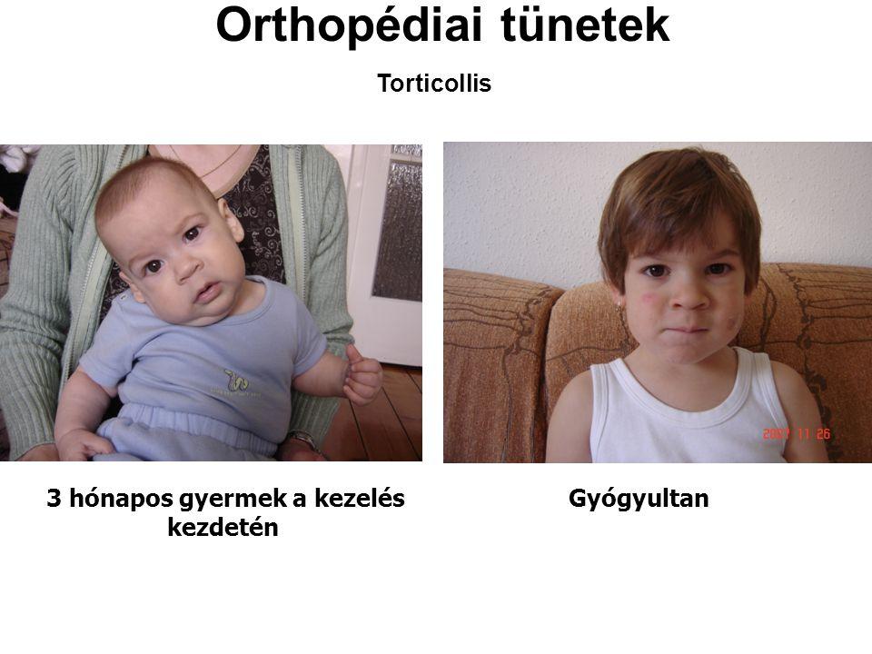 Orthopédiai tünetek 3 hónapos gyermek a kezelés kezdetén Gyógyultan Torticollis