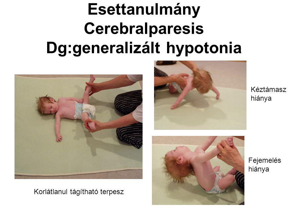 Esettanulmány Cerebralparesis Dg:generalizált hypotonia Korlátlanul tágítható terpesz Kéztámasz hiánya Fejemelés hiánya