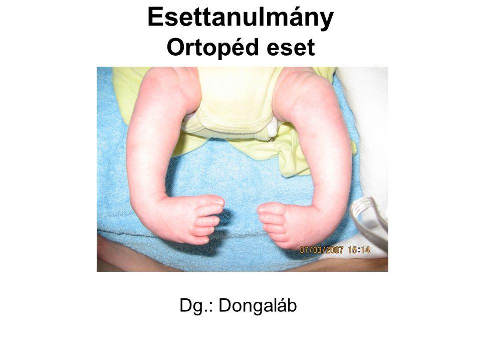 Esettanulmány Ortopéd eset Dg.: Dongaláb
