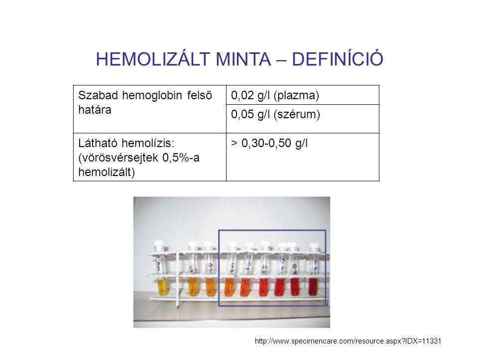 HEMOLIZÁLT MINTA – DEFINÍCIÓ Szabad hemoglobin felső határa 0,02 g/l (plazma) 0,05 g/l (szérum) Látható hemolízis: (vörösvérsejtek 0,5%-a hemolizált) > 0,30-0,50 g/l http://www.specimencare.com/resource.aspx?IDX=11331