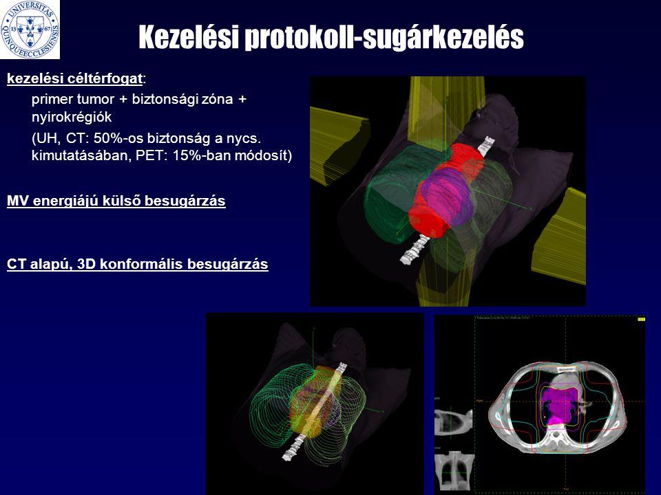 Kezelési protokoll-sugárkezelés kezelési céltérfogat: primer tumor + biztonsági zóna + nyirokrégiók (UH, CT: 50%-os biztonság a nycs. kimutatásában, P