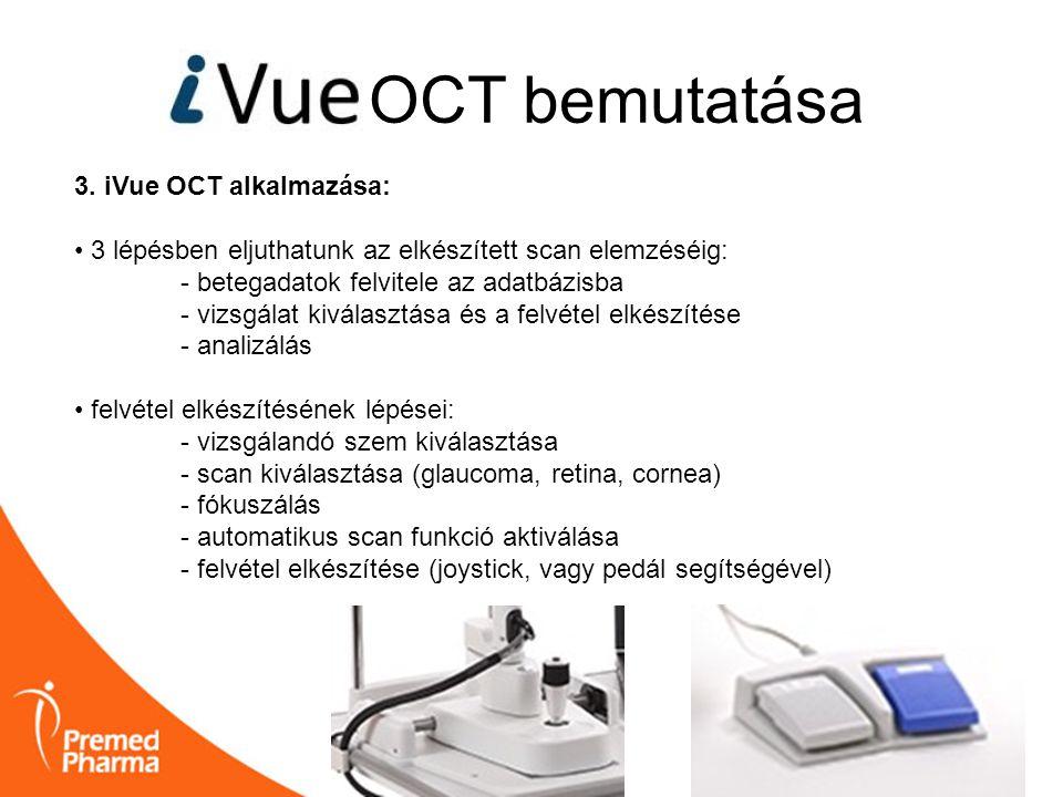 3. iVue OCT alkalmazása: • 3 lépésben eljuthatunk az elkészített scan elemzéséig: - betegadatok felvitele az adatbázisba - vizsgálat kiválasztása és a