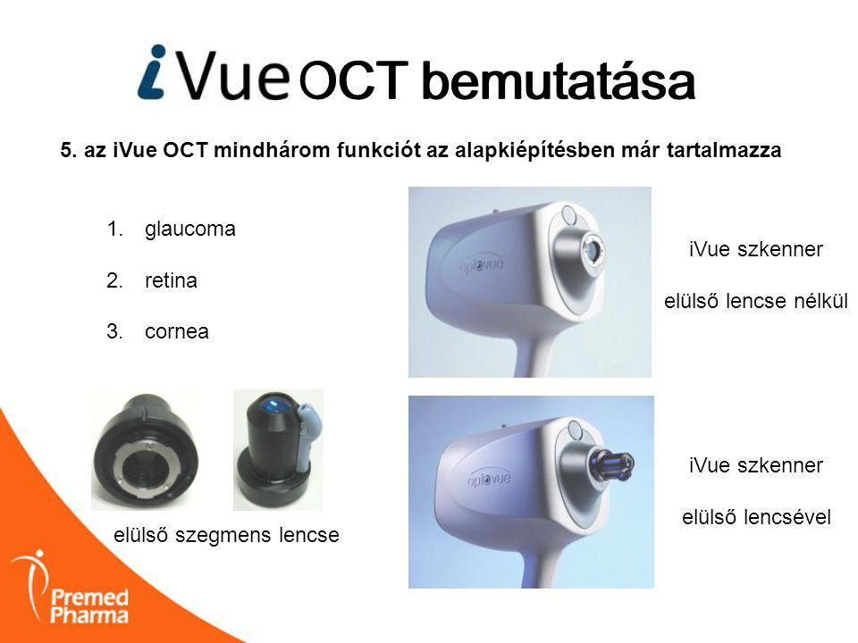 iVUE OCT bemutatása OCT bemutatása 5. az iVue OCT mindhárom funkciót az alapkiépítésben már tartalmazza 1. glaucoma 2. retina 3. cornea iVue szkenner