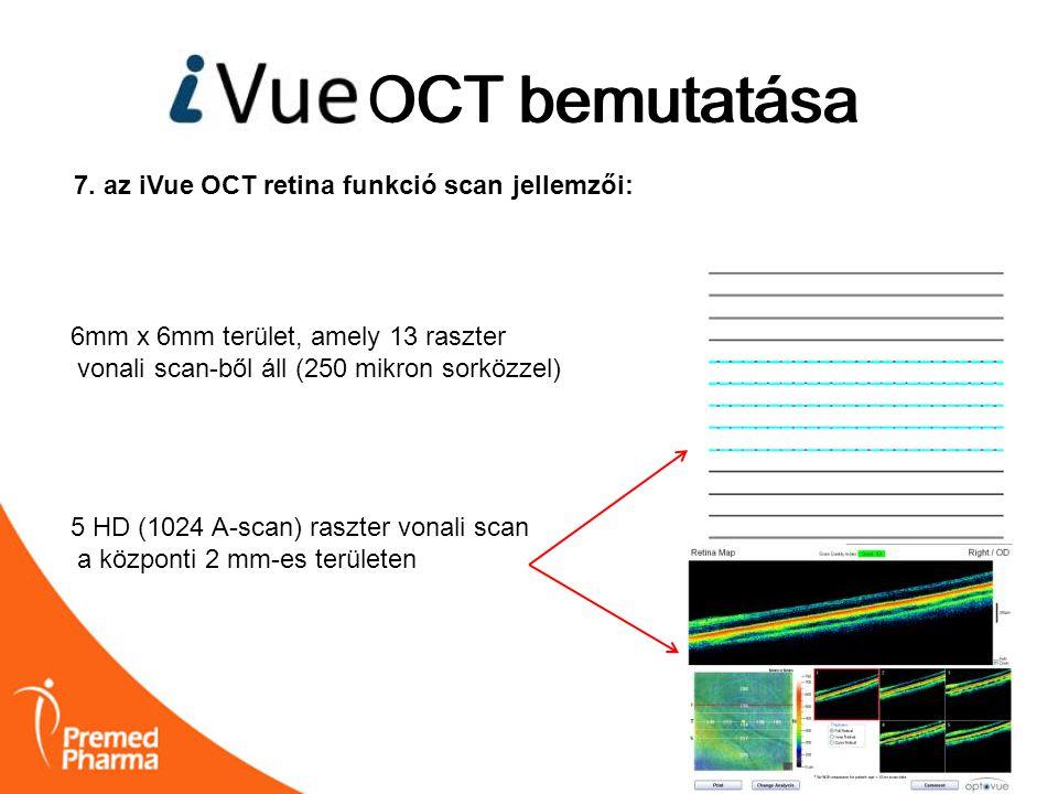 iVUE OCT bemutatása OCT bemutatása 7. az iVue OCT retina funkció scan jellemzői: 6mm x 6mm terület, amely 13 raszter vonali scan-ből áll (250 mikron s