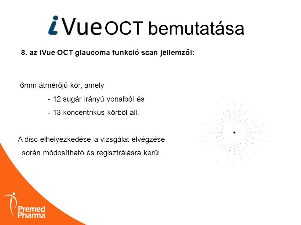 OCT bemutatása 8. az iVue OCT glaucoma funkció scan jellemzői: 6mm átmérőjű kör, amely - 12 sugár irányú vonalból és - 13 koncentrikus körből áll. A d