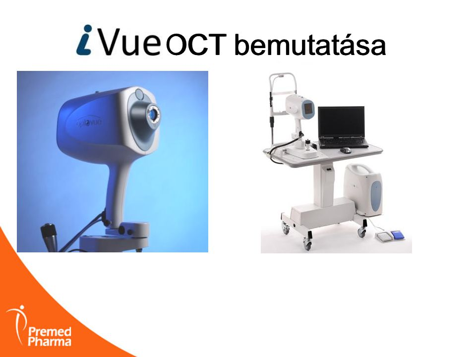 iVUE OCT bemutatása OCT bemutatása