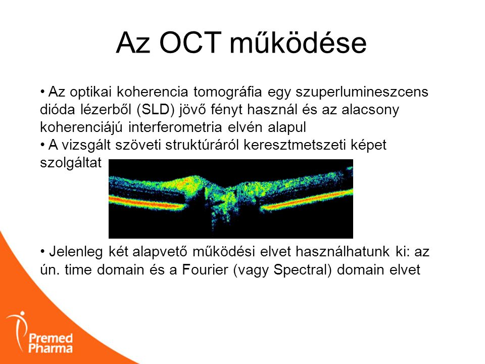 Az OCT működése • Az optikai koherencia tomográfia egy szuperlumineszcens dióda lézerből (SLD) jövő fényt használ és az alacsony koherenciájú interfer