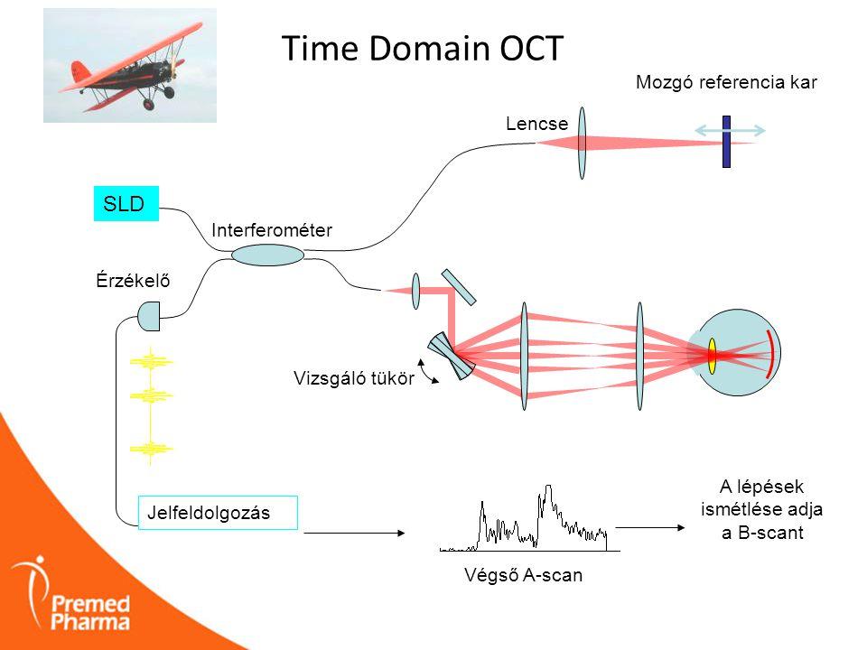 Fourier Domain OCT SLD Spektrométer elemzi a jelet hullámhossz szerint FFT A jelet hullámhossz szerint osztjuk Rögzített referencia kar Interferométer Spectrális interferogram Fourier transzformáció segítségével kiszámoljuk az A-scant