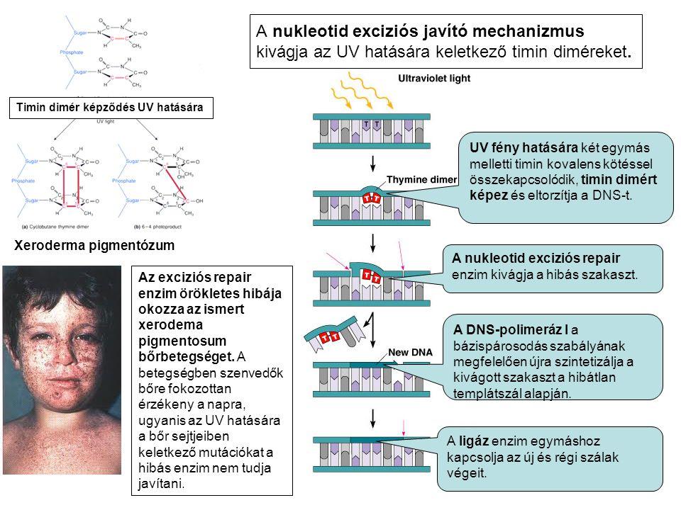 UV fény hatására két egymás melletti timin kovalens kötéssel összekapcsolódik, timin dimért képez és eltorzítja a DNS-t.