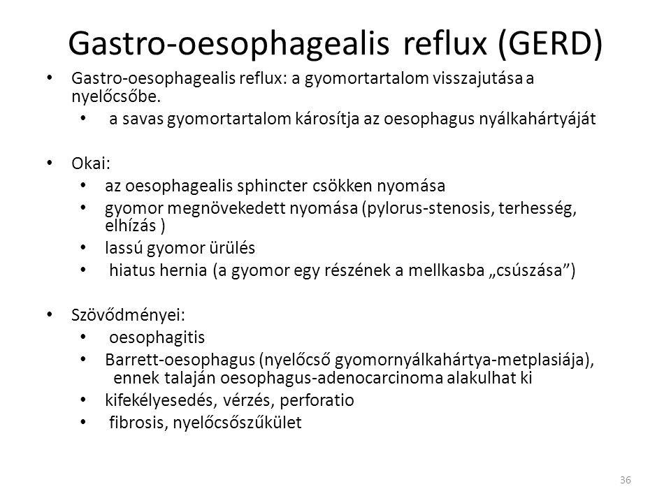 36 Gastro-oesophagealis reflux (GERD) • Gastro-oesophagealis reflux: a gyomortartalom visszajutása a nyelőcsőbe. • a savas gyomortartalom károsítja az
