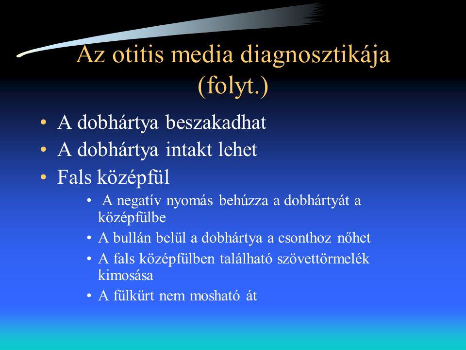 Az otitis media diagnosztikája (folyt.) •A dobhártya beszakadhat •A dobhártya intakt lehet •Fals középfül • A negatív nyomás behúzza a dobhártyát a kö