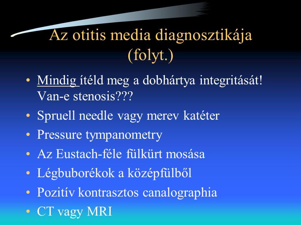 Az otitis media diagnosztikája (folyt.) •Mindig ítéld meg a dobhártya integritását! Van-e stenosis??? •Spruell needle vagy merev katéter •Pressure tym