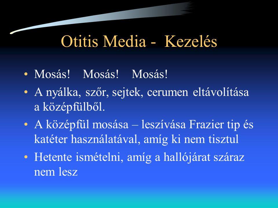 Otitis Media - Kezelés •Mosás! Mosás! Mosás! •A nyálka, szőr, sejtek, cerumen eltávolítása a középfülből. •A középfül mosása – leszívása Frazier tip é