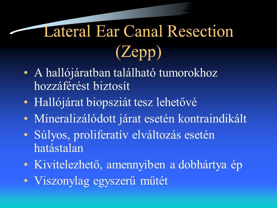 Lateral Ear Canal Resection (Zepp) •A hallójáratban található tumorokhoz hozzáférést biztosít •Hallójárat biopsziát tesz lehetővé •Mineralizálódott já