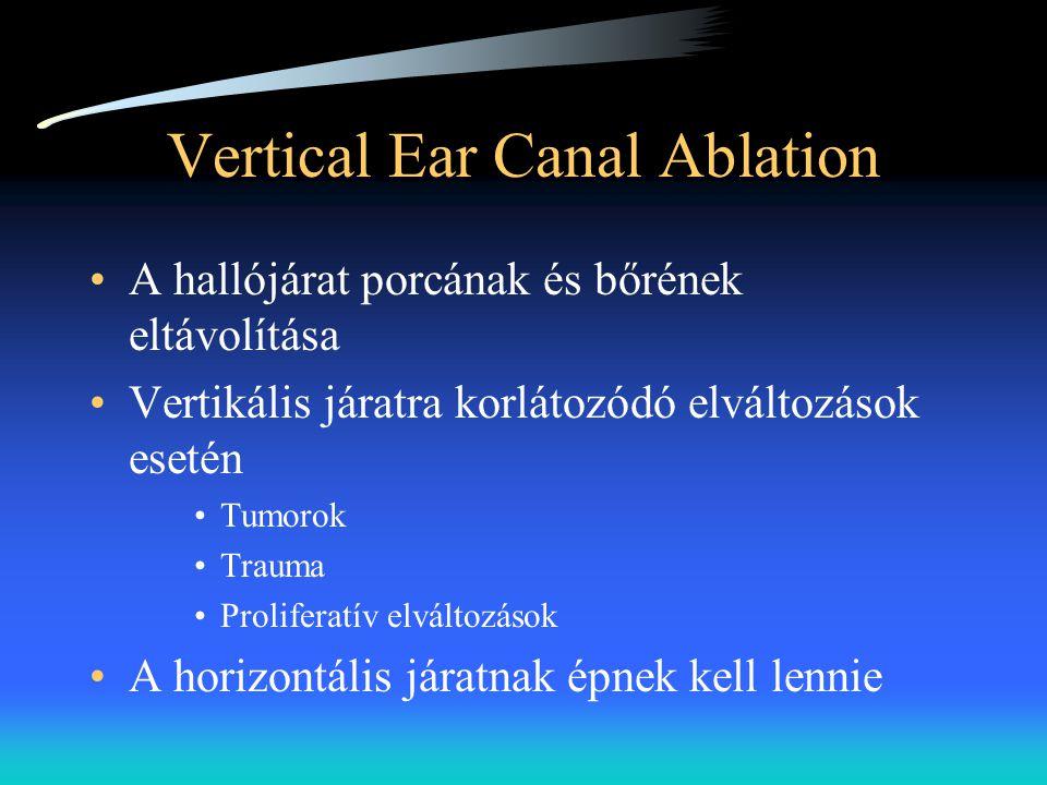 Vertical Ear Canal Ablation •A hallójárat porcának és bőrének eltávolítása •Vertikális járatra korlátozódó elváltozások esetén •Tumorok •Trauma •Proli