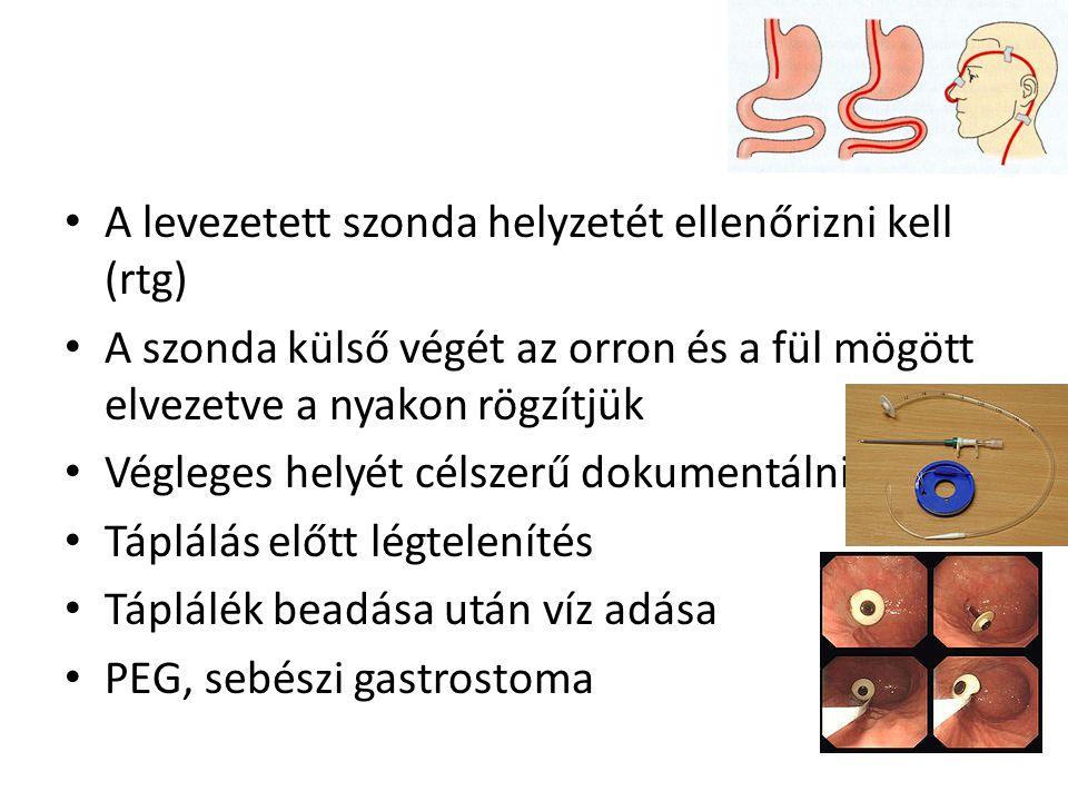 • A levezetett szonda helyzetét ellenőrizni kell (rtg) • A szonda külső végét az orron és a fül mögött elvezetve a nyakon rögzítjük • Végleges helyét