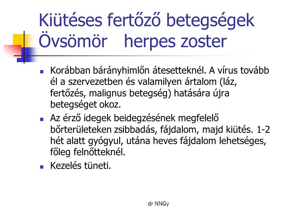 Kiütéses fertőző betegségek Övsömörherpes zoster  Korábban bárányhimlőn átesetteknél. A vírus tovább él a szervezetben és valamilyen ártalom (láz, fe