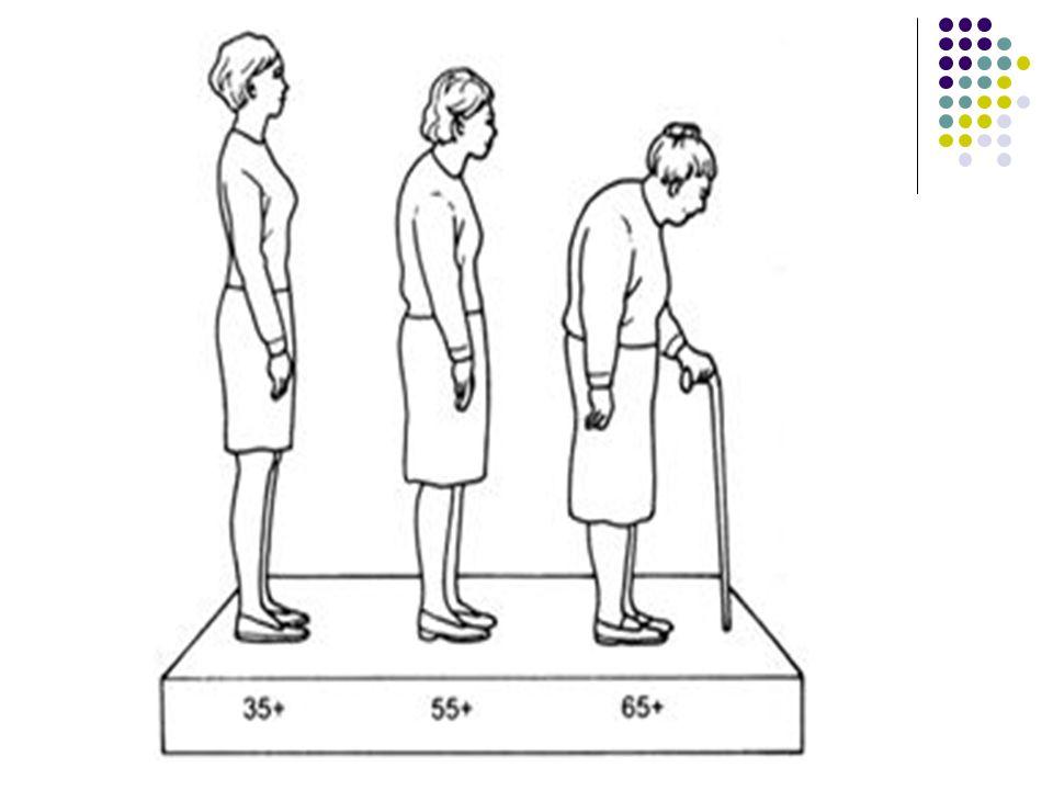 Testtartás, járás  Sok esetben előfordul hogy, a hajlott gerincoszlop miatt görnyedten, púposan járnak,  mozgásszervi elváltozások miatt sántítanak.