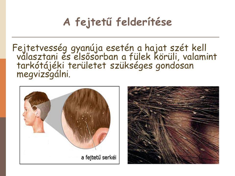 A fejtetű felderítése Fejtetvesség gyanúja esetén a hajat szét kell választani és elsősorban a fülek körüli, valamint tarkótájéki területet szükséges gondosan megvizsgálni.