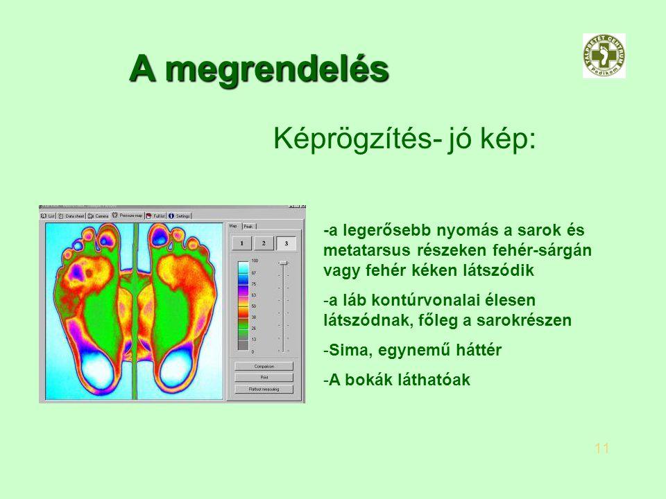 -a legerősebb nyomás a sarok és metatarsus részeken fehér-sárgán vagy fehér kéken látszódik -a láb kontúrvonalai élesen látszódnak, főleg a sarokrésze