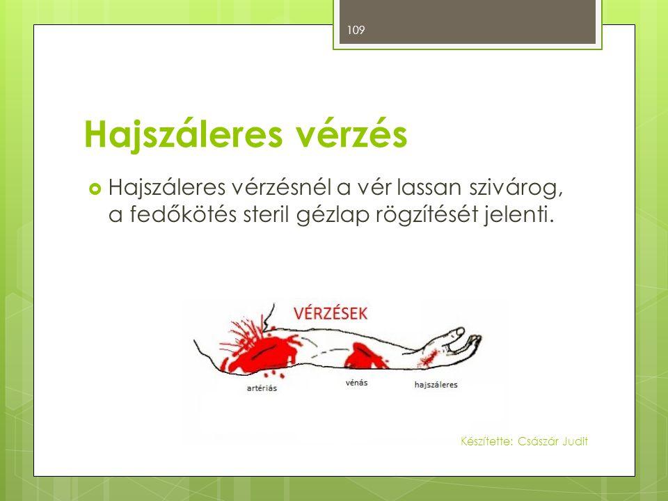 Hajszáleres vérzés  Hajszáleres vérzésnél a vér lassan szivárog, a fedőkötés steril gézlap rögzítését jelenti. 109 Készítette: Császár Judit