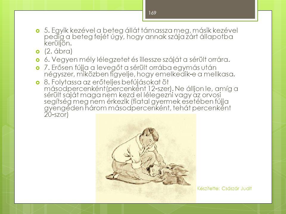  5. Egyik kezével a beteg állát támassza meg, másik kezével pedig a beteg fejét úgy, hogy annak szája zárt állapotba kerüljön.  (2. ábra)  6. Vegye