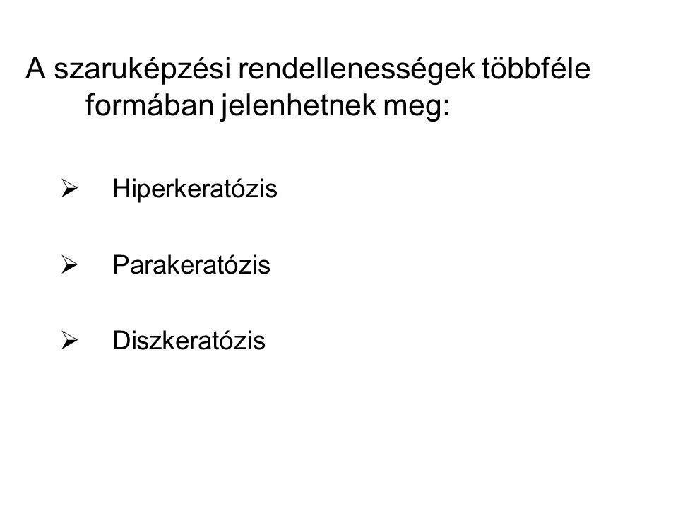 A szaruképzési rendellenességek többféle formában jelenhetnek meg:  Hiperkeratózis  Parakeratózis  Diszkeratózis
