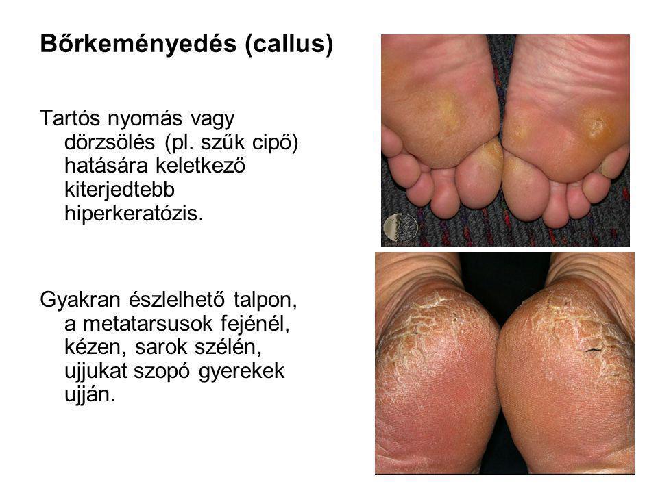 Tyúkszem (clavus) A talp vagy a lábujjak körülírt, vaskos hiperkeratosisa.