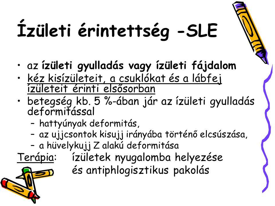 Ízületi érintettség -SLE •az ízületi gyulladás vagy ízületi fájdalom •kéz kisízületeit, a csuklókat és a lábfej ízületeit érinti elsősorban •betegség