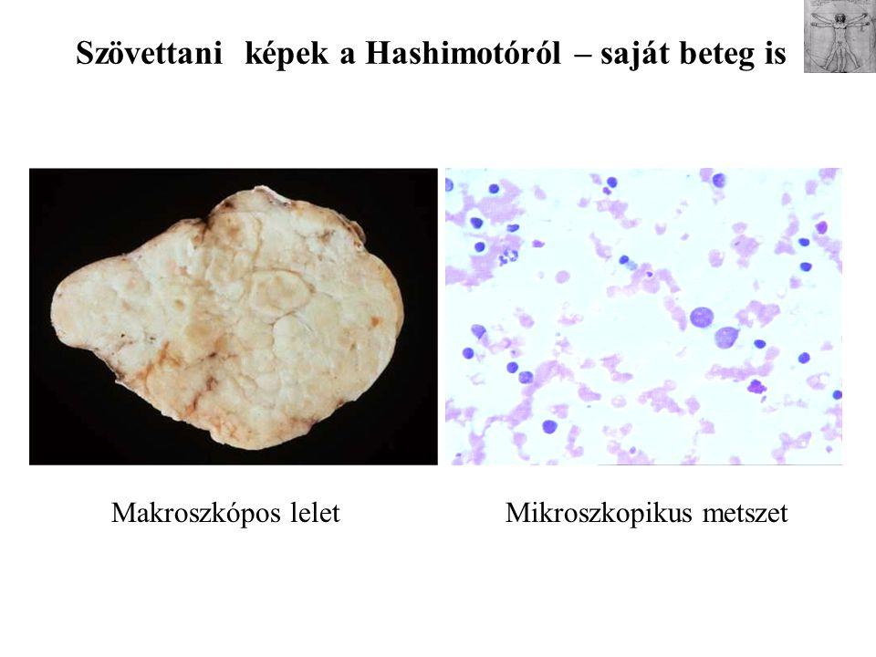Szövettani képek a Hashimotóról – saját beteg is Makroszkópos leletMikroszkopikus metszet