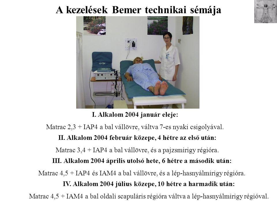 A kezelések Bemer technikai sémája I. Alkalom 2004 január eleje: Matrac 2,3 + IAP4 a bal vállövre, váltva 7-es nyaki csigolyával. II. Alkalom 2004 feb