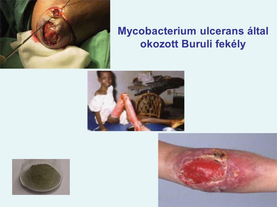 Mycobacterium ulcerans által okozott Buruli fekély