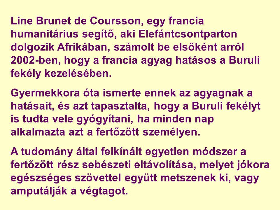 Line Brunet de Coursson, egy francia humanitárius segítő, aki Elefántcsontparton dolgozik Afrikában, számolt be elsőként arról 2002-ben, hogy a francia agyag hatásos a Buruli fekély kezelésében.