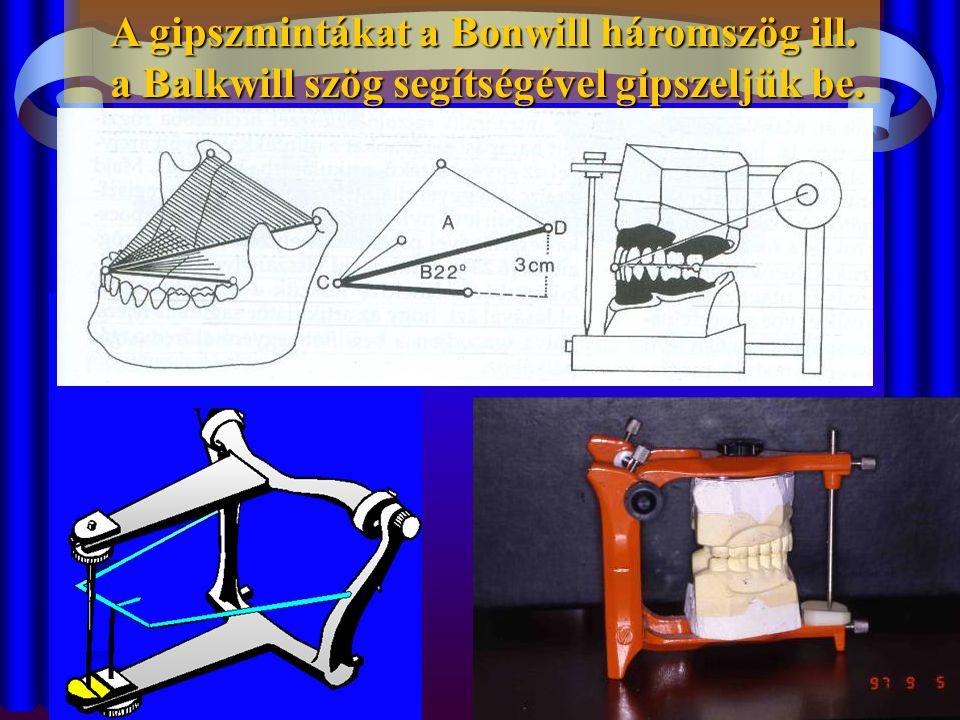 A gipszmintákat a Bonwill háromszög ill. a Balkwill szög segítségével gipszeljük be.