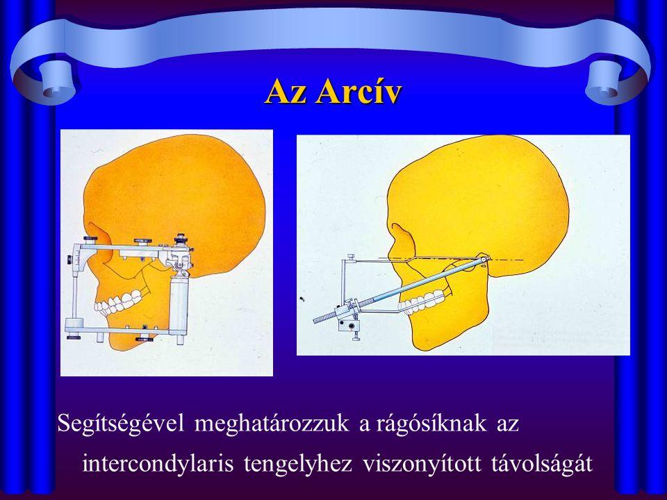Az Arcív Segítségével meghatározzuk a rágósíknak az intercondylaris tengelyhez viszonyított távolságát