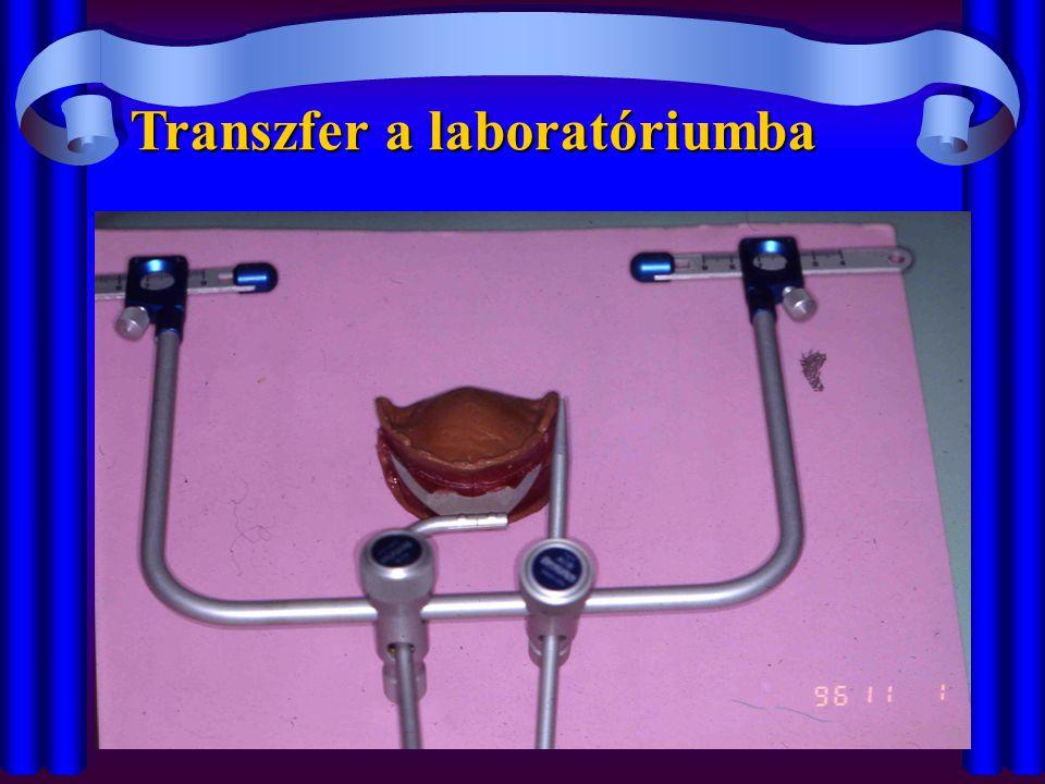 Transzfer a laboratóriumba
