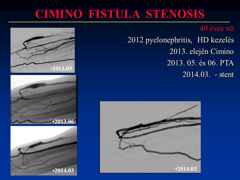 CIMINO FISTULA STENOSIS 49 éves nő 2012 pyelonephritis, HD kezelés 2013. elején Cimino 2013. 05. és 06. PTA 2014.03. - stent 49 éves nő 2012 pyeloneph