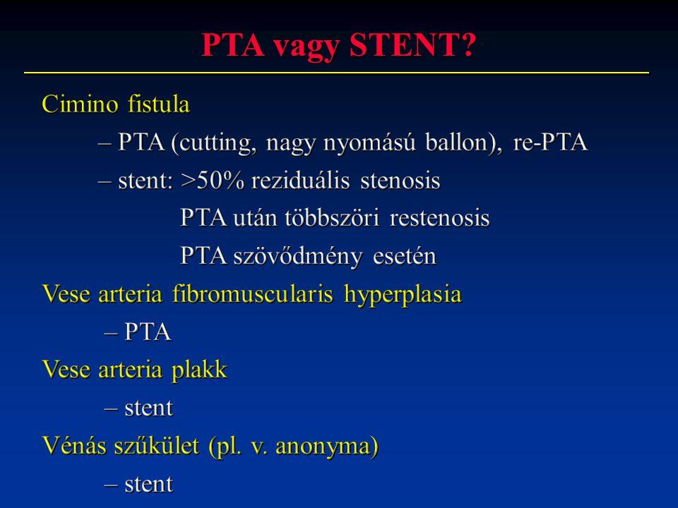 PTA vagy STENT?