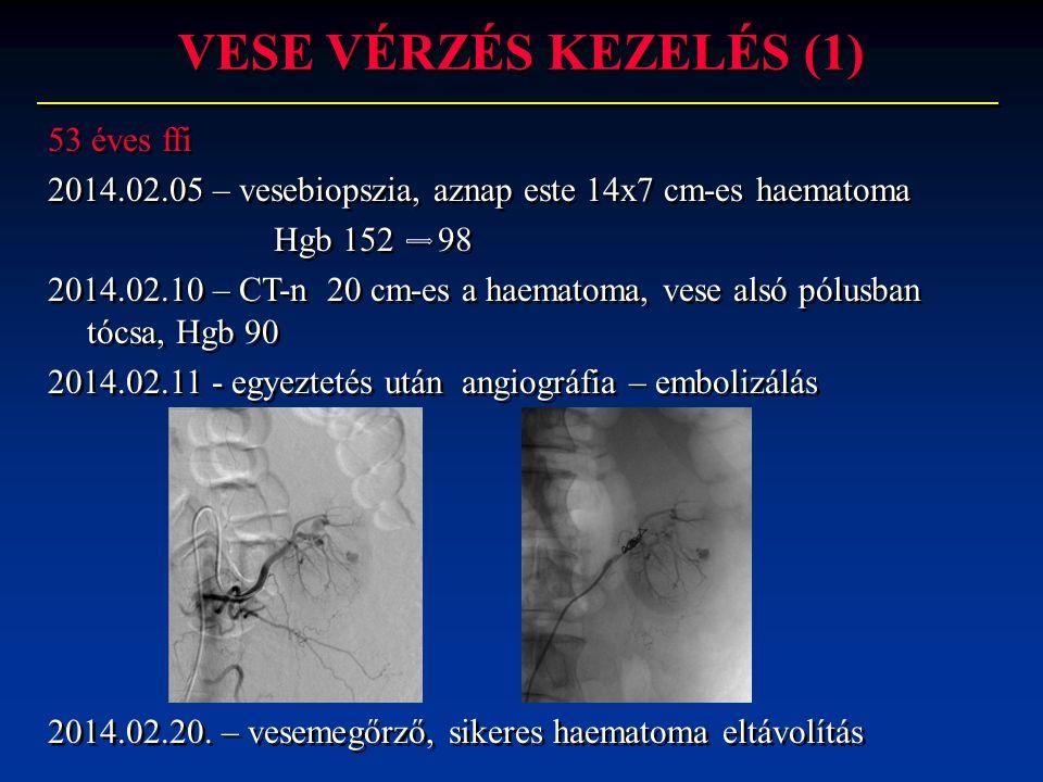 VESE VÉRZÉS KEZELÉS (1) 53 éves ffi 2014.02.05 – vesebiopszia, aznap este 14x7 cm-es haematoma Hgb 152 98 2014.02.10 – CT-n 20 cm-es a haematoma, vese