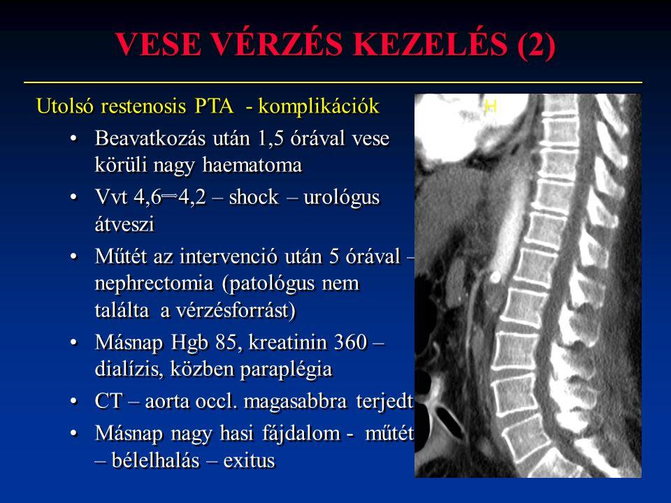 Utolsó restenosis PTA - komplikációk •Beavatkozás után 1,5 órával vese körüli nagy haematoma •Vvt 4,6 4,2 – shock – urológus átveszi •Műtét az interve