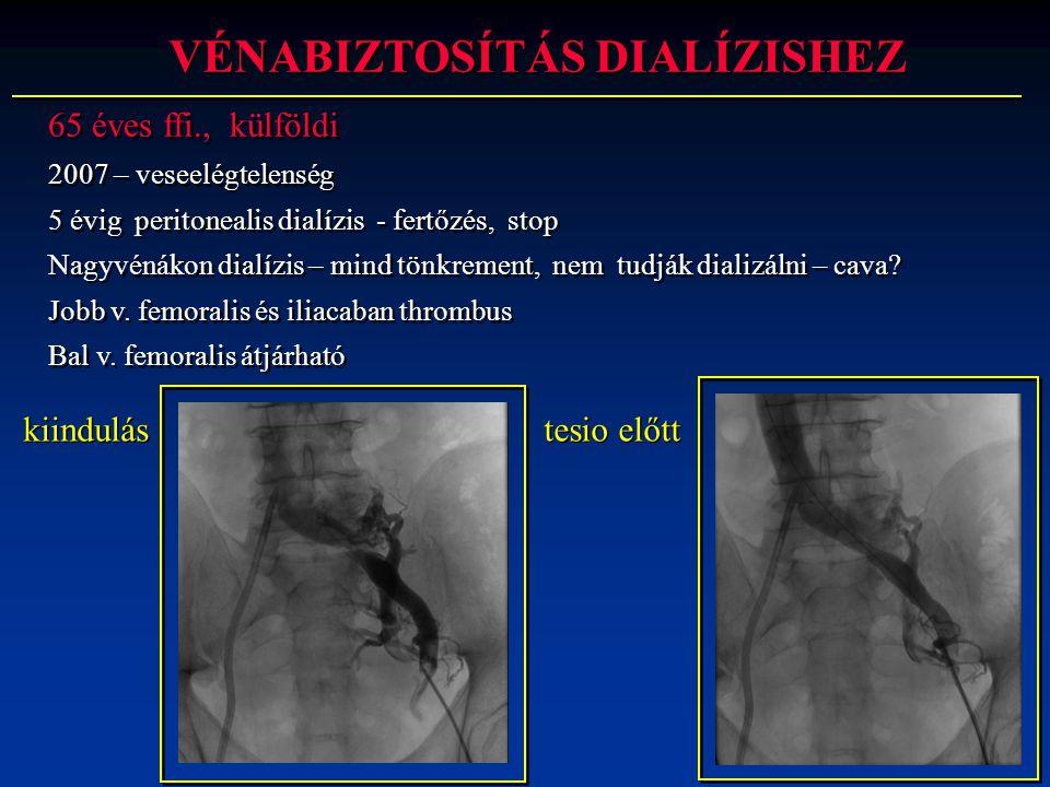 65 éves ffi., külföldi 2007 – veseelégtelenség 5 évig peritonealis dialízis - fertőzés, stop Nagyvénákon dialízis – mind tönkrement, nem tudják dializ