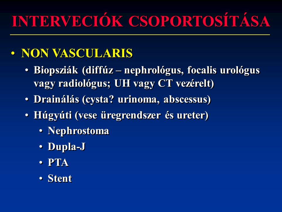 INTERVECIÓK CSOPORTOSÍTÁSA •NON VASCULARIS •Biopsziák (diffúz – nephrológus, focalis urológus vagy radiológus; UH vagy CT vezérelt) •Drainálás (cysta?