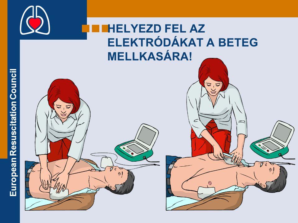 European Resuscitation Council HELYEZD FEL AZ ELEKTRÓDÁKAT A BETEG MELLKASÁRA!