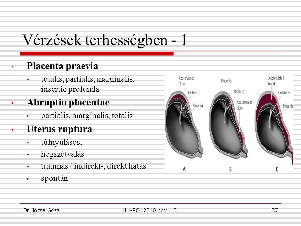 Dr. Józsa GézaHU-RO 2010.nov. 19.37 Vérzések terhességben - 1 • Placenta praevia • totalis, partialis, marginalis, insertio profunda • Abruptio placen