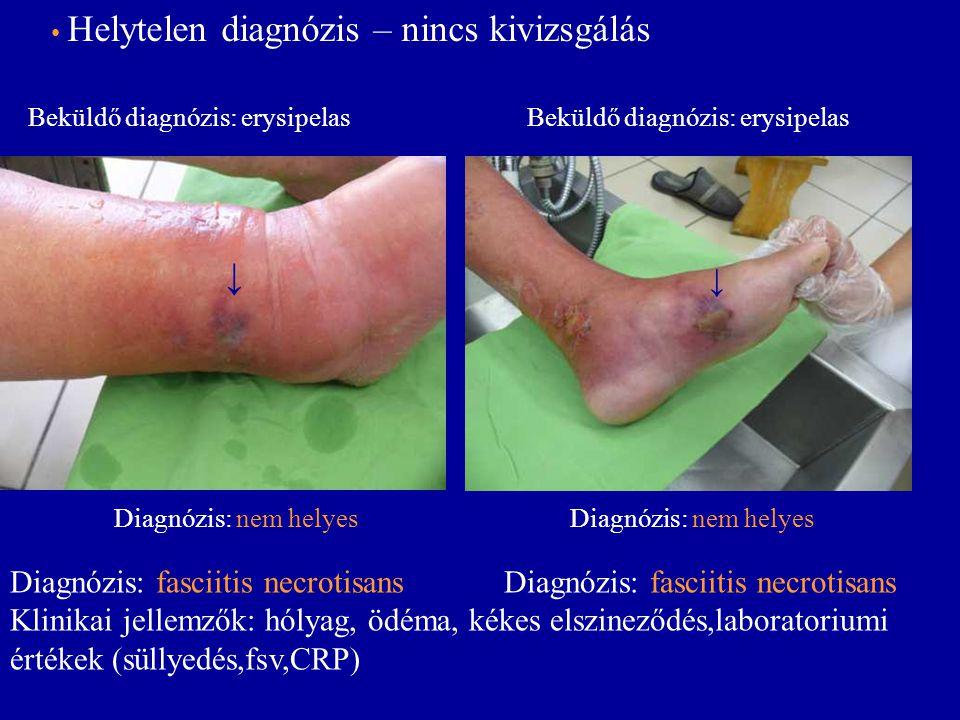 • Helytelen diagnózis – nincs kivizsgálás Beküldő diagnózis: erysipelas Diagnózis: nem helyes Diagnózis: fasciitis necrotisans Klinikai jellemzők: hól