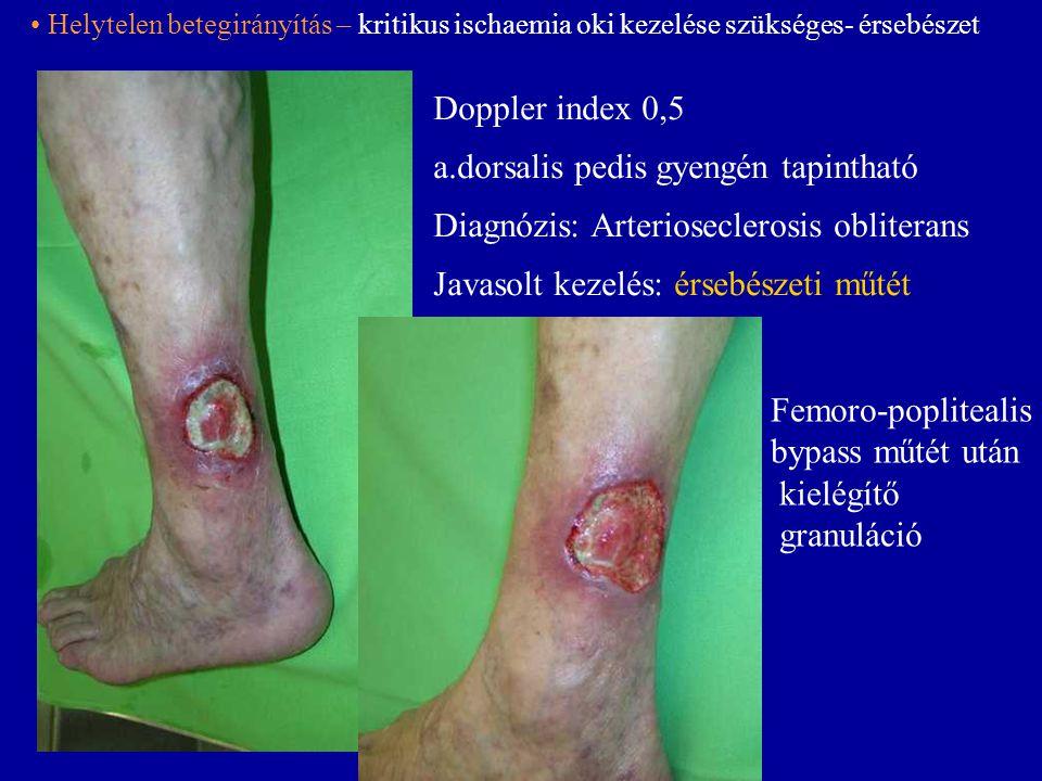 Doppler index 0,5 a.dorsalis pedis gyengén tapintható Diagnózis: Arterioseclerosis obliterans Javasolt kezelés: érsebészeti műtét Femoro-poplitealis b