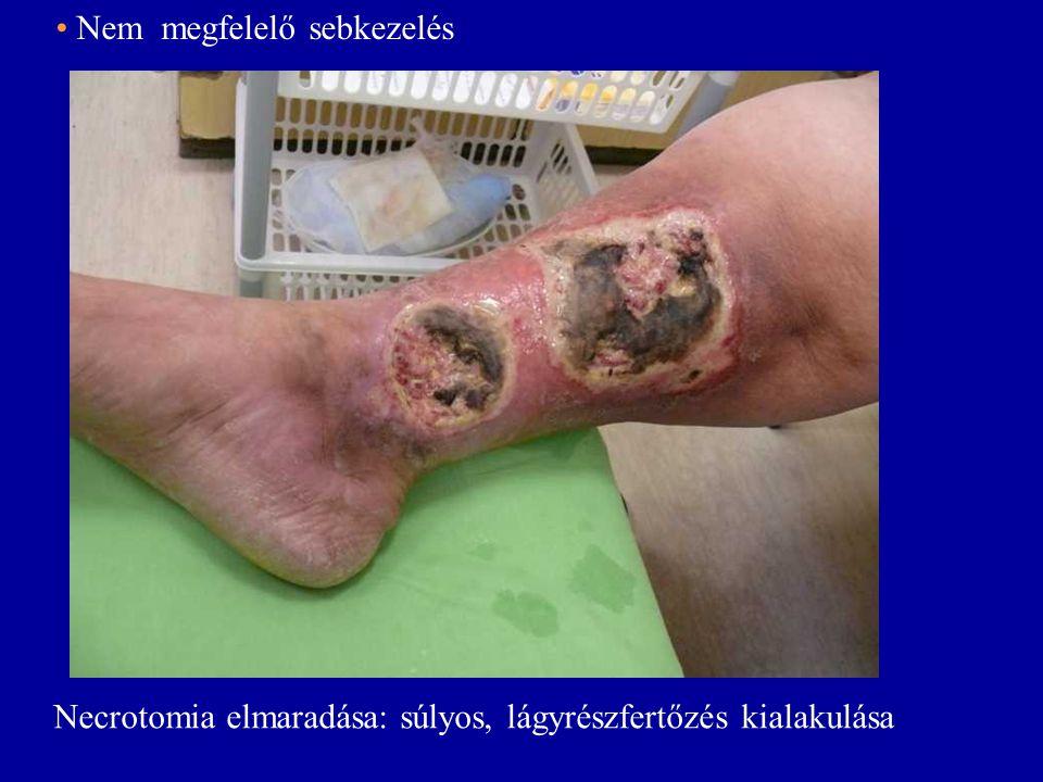 • Nem megfelelő sebkezelés Necrotomia elmaradása: súlyos, lágyrészfertőzés kialakulása