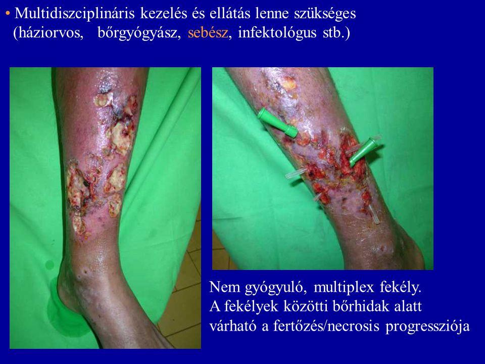Nem gyógyuló, multiplex fekély. A fekélyek közötti bőrhidak alatt várható a fertőzés/necrosis progressziója • Multidiszciplináris kezelés és ellátás l