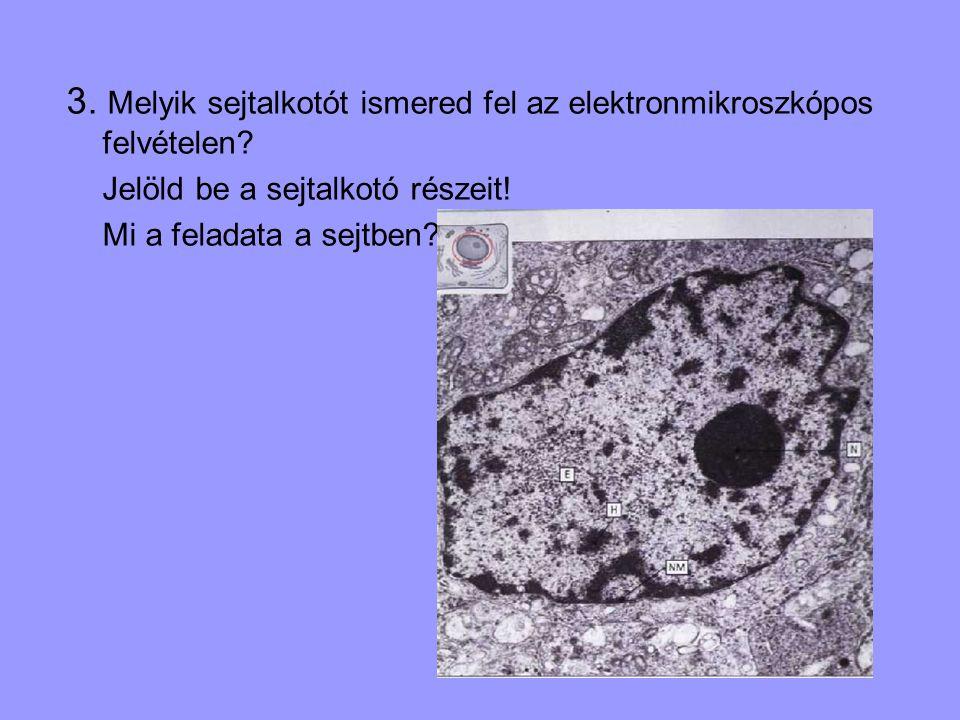 3. Melyik sejtalkotót ismered fel az elektronmikroszkópos felvételen? Jelöld be a sejtalkotó részeit! Mi a feladata a sejtben?